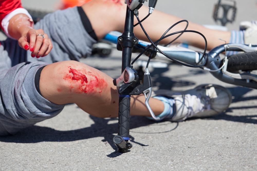mężczyzna który upadł na rowerze i uszkodził sobie kolano